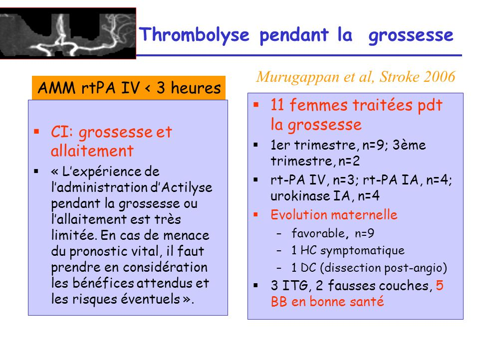 Thrombolyse pendant la grossesse