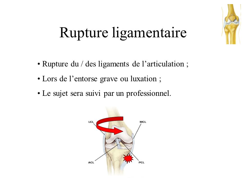 Rupture ligamentaire Rupture du / des ligaments de l'articulation ;