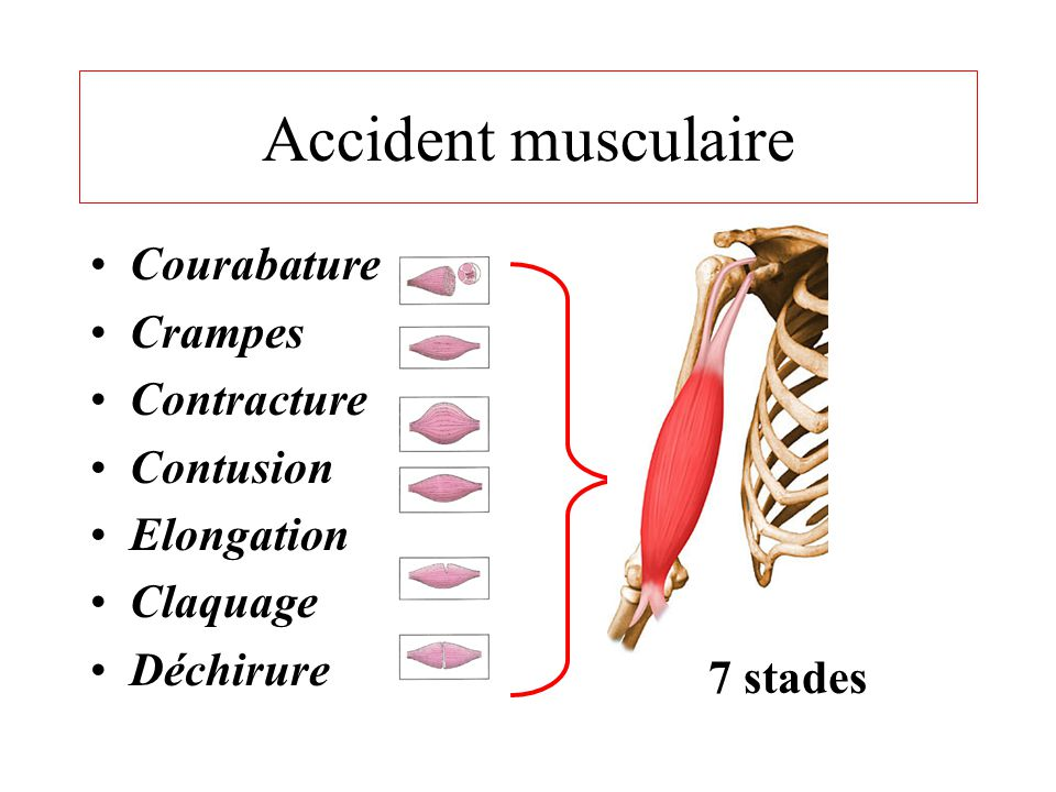 Accident musculaire Courabature Crampes Contracture Contusion