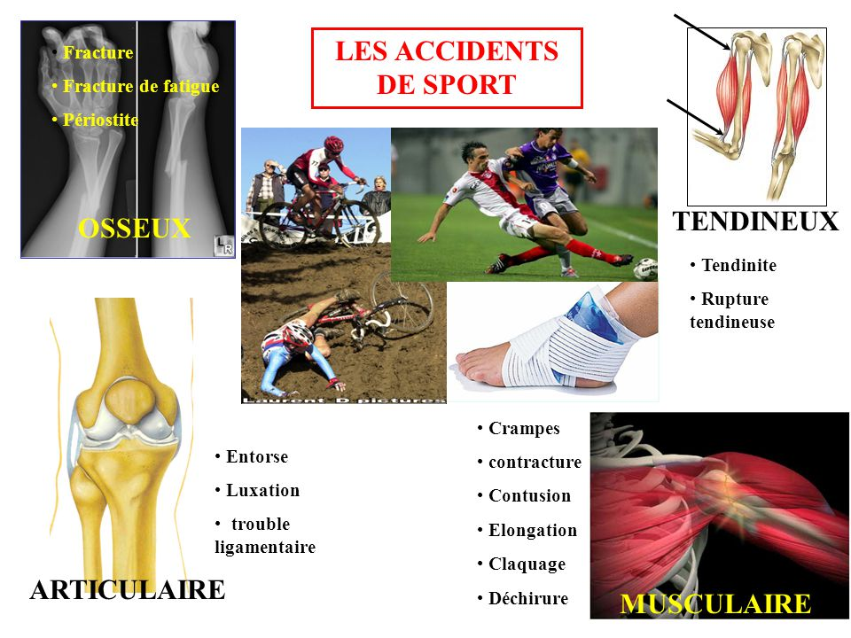 TENDINEUX OSSEUX LES ACCIDENTS DE SPORT ARTICULAIRE