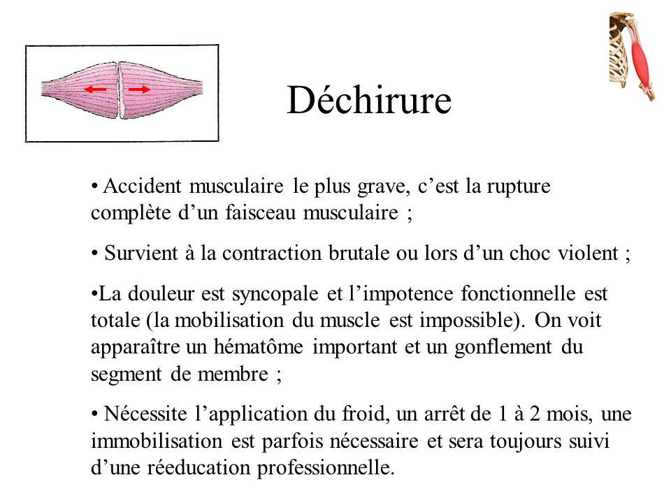Déchirure Accident musculaire le plus grave, c'est la rupture complète d'un faisceau musculaire ;