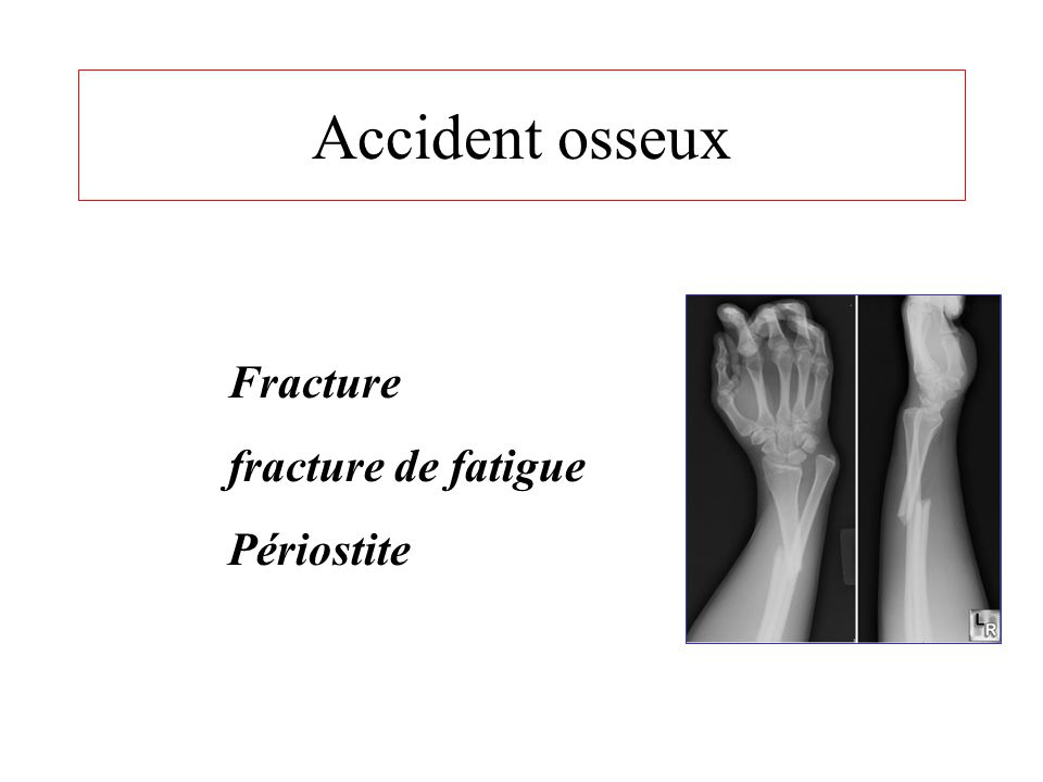 Accident osseux Fracture fracture de fatigue Périostite