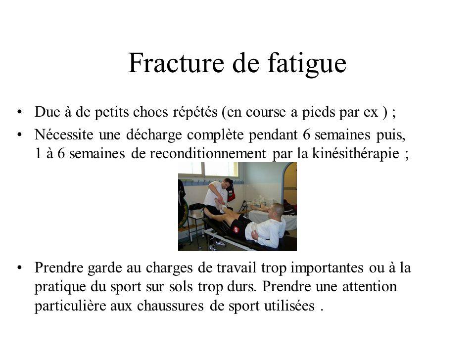 Fracture de fatigue Due à de petits chocs répétés (en course a pieds par ex ) ;