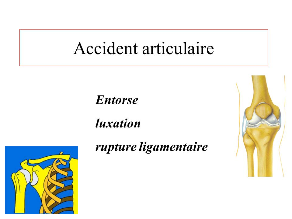 Accident articulaire Entorse luxation rupture ligamentaire