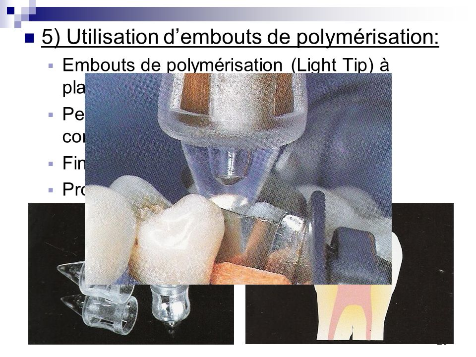 5) Utilisation d'embouts de polymérisation: