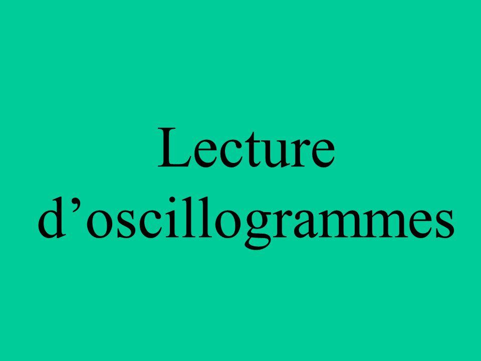 Lecture d'oscillogrammes