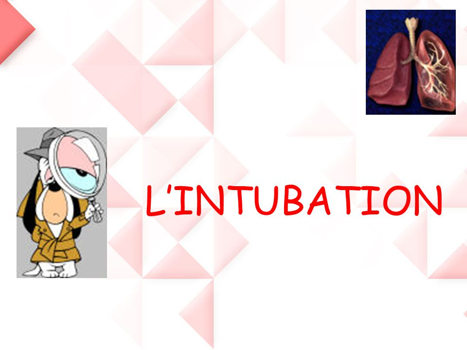 L'INTUBATION
