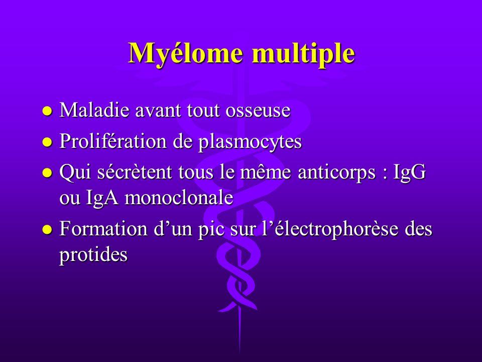 Myélome multiple Maladie avant tout osseuse