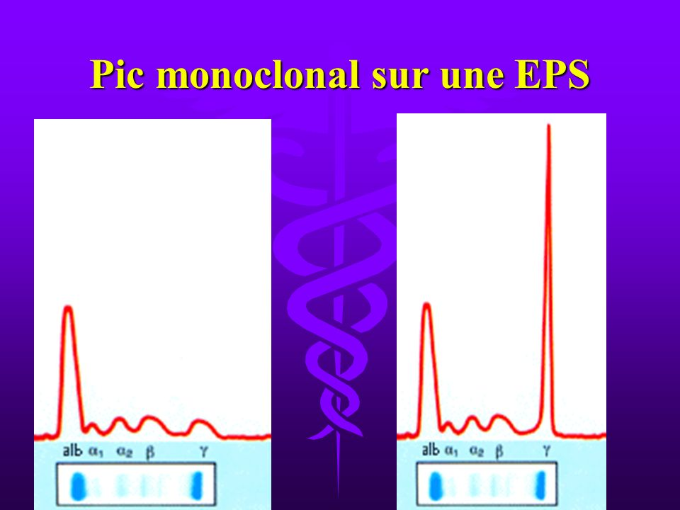 Pic monoclonal sur une EPS