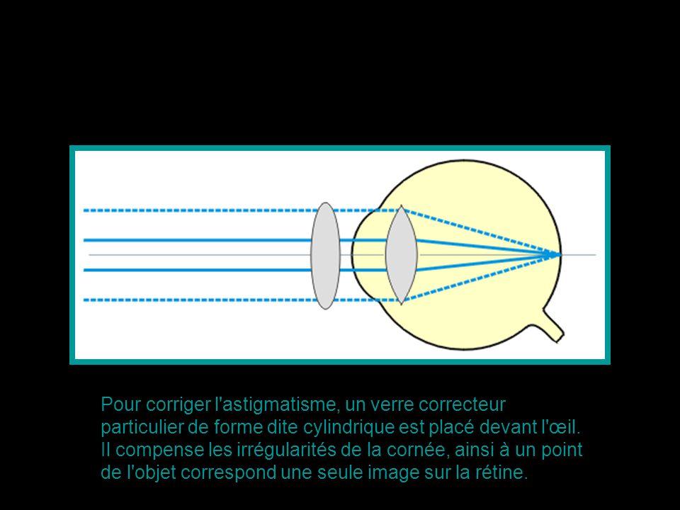 Pour corriger l astigmatisme, un verre correcteur particulier de forme dite cylindrique est placé devant l œil.