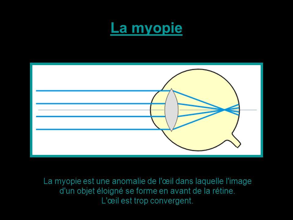 L œil est trop convergent.