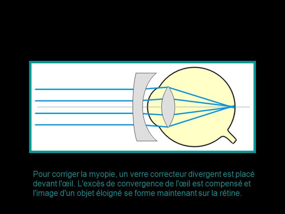 Pour corriger la myopie, un verre correcteur divergent est placé devant l œil.