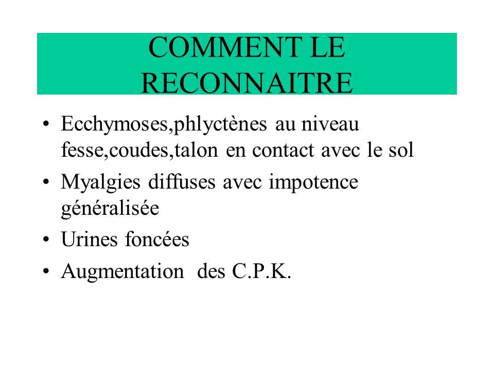 COMMENT LE RECONNAITRE