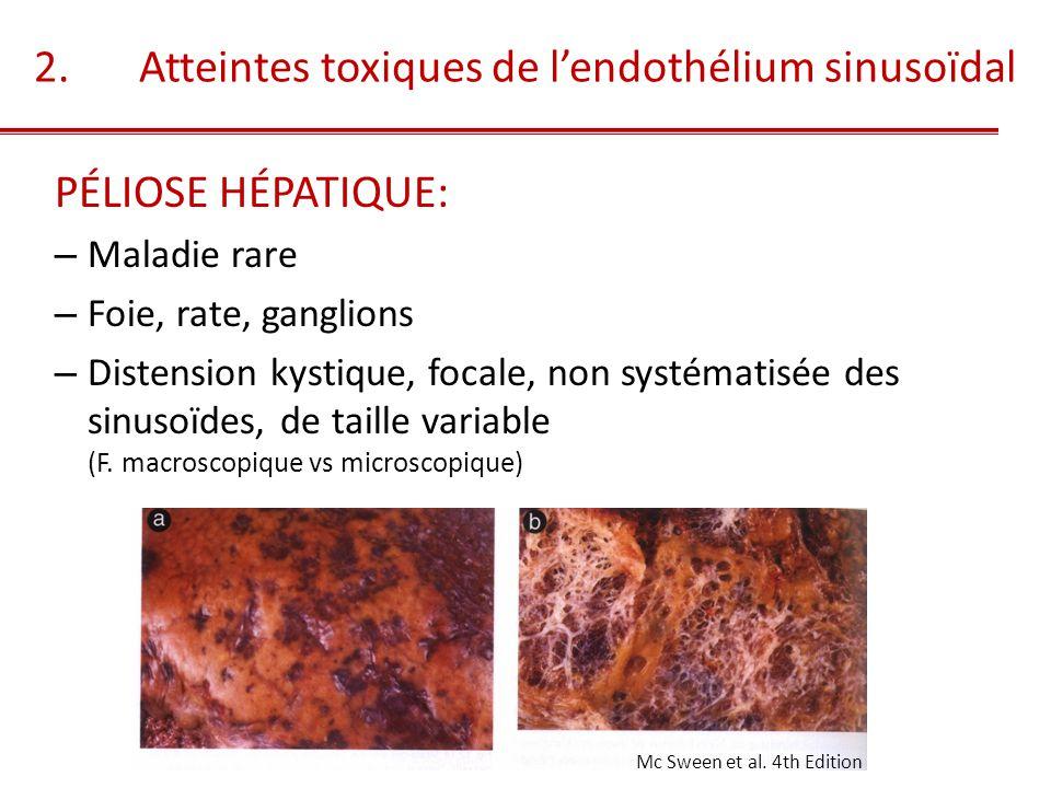 2. Atteintes toxiques de l'endothélium sinusoïdal