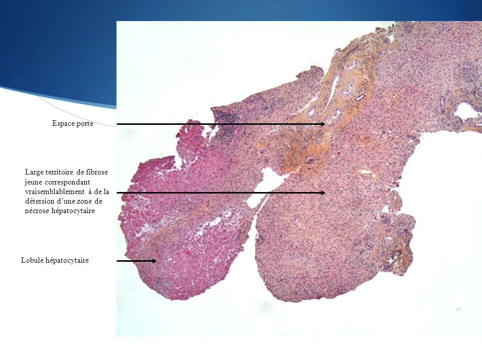 Espace porte Large territoire de fibrose jeune correspondant vraisemblablement à de la détersion d'une zone de nécrose hépatocytaire.