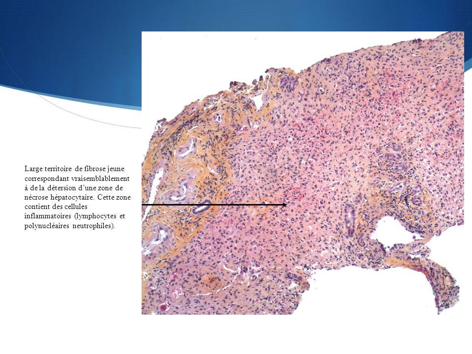 Large territoire de fibrose jeune correspondant vraisemblablement à de la détersion d'une zone de nécrose hépatocytaire.