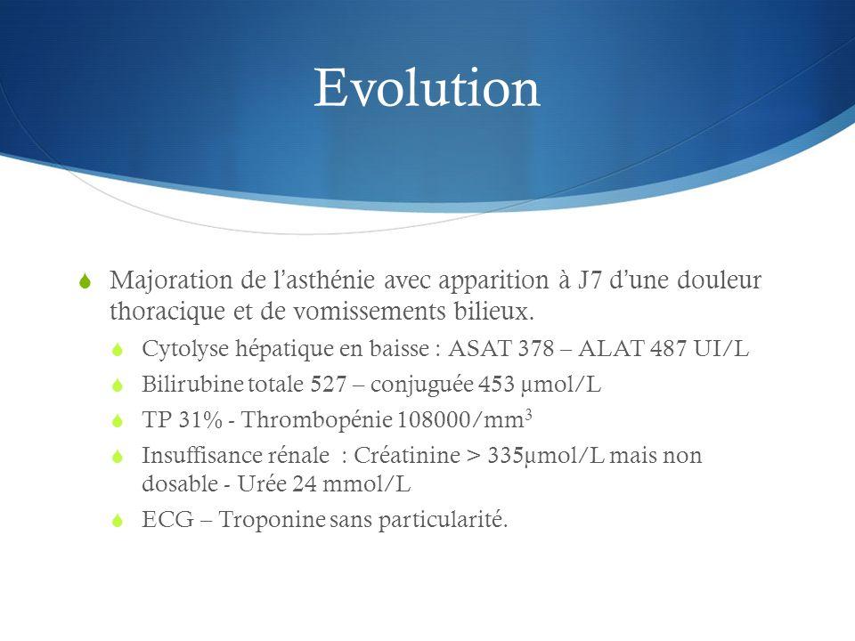 Evolution Majoration de l'asthénie avec apparition à J7 d'une douleur thoracique et de vomissements bilieux.