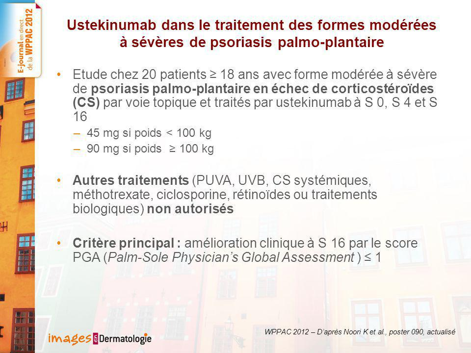 Ustekinumab dans le traitement des formes modérées à sévères de psoriasis palmo-plantaire