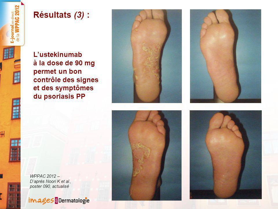 Résultats (3) : L'ustekinumab à la dose de 90 mg permet un bon contrôle des signes et des symptômes du psoriasis PP