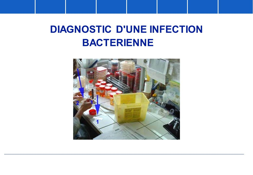 DIAGNOSTIC D UNE INFECTION BACTERIENNE