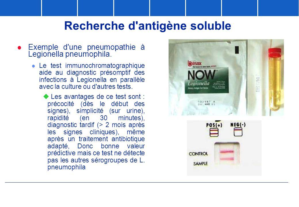 Recherche d antigène soluble