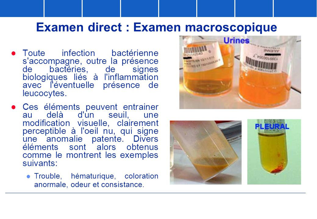 Examen direct : Examen macroscopique
