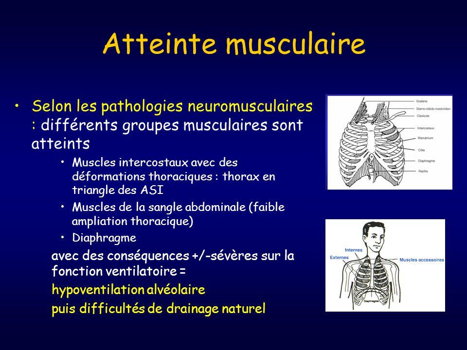 Atteinte musculaire Selon les pathologies neuromusculaires : différents groupes musculaires sont atteints.