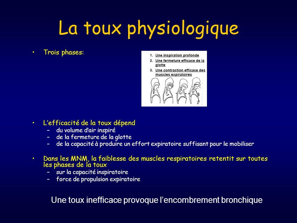 La toux physiologique Trois phases: L'efficacité de la toux dépend. du volume d'air inspiré. de la fermeture de la glotte.