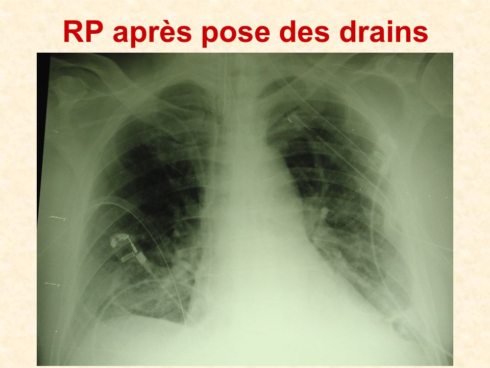 RP après pose des drains