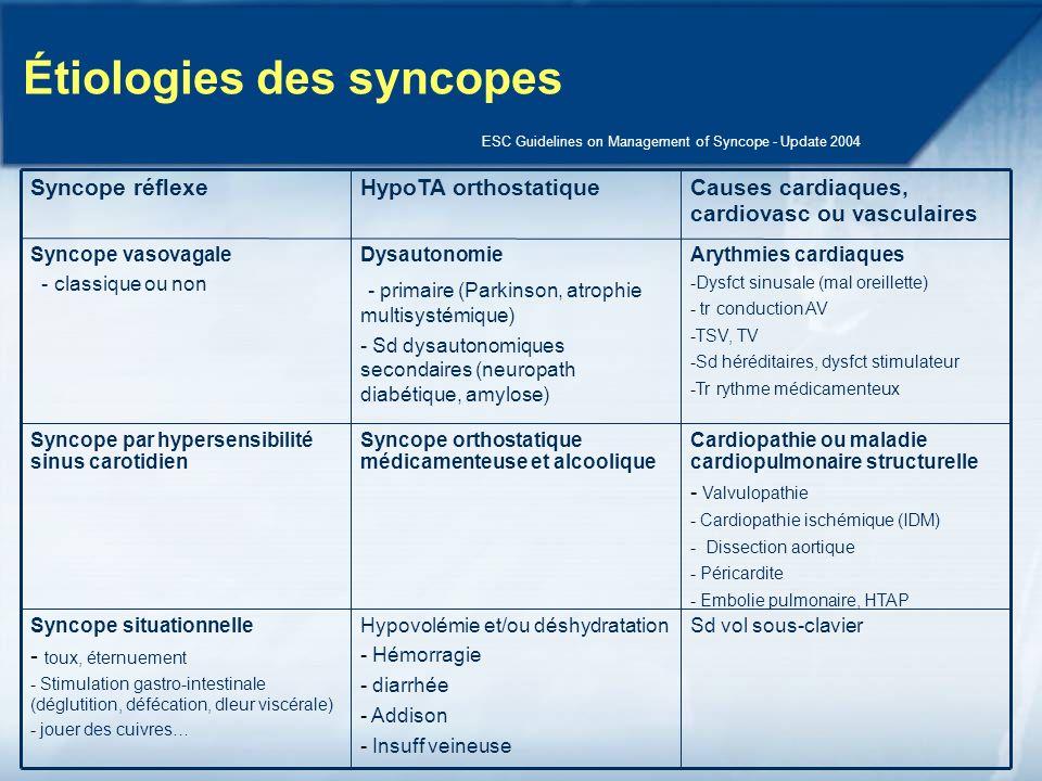 Étiologies des syncopes
