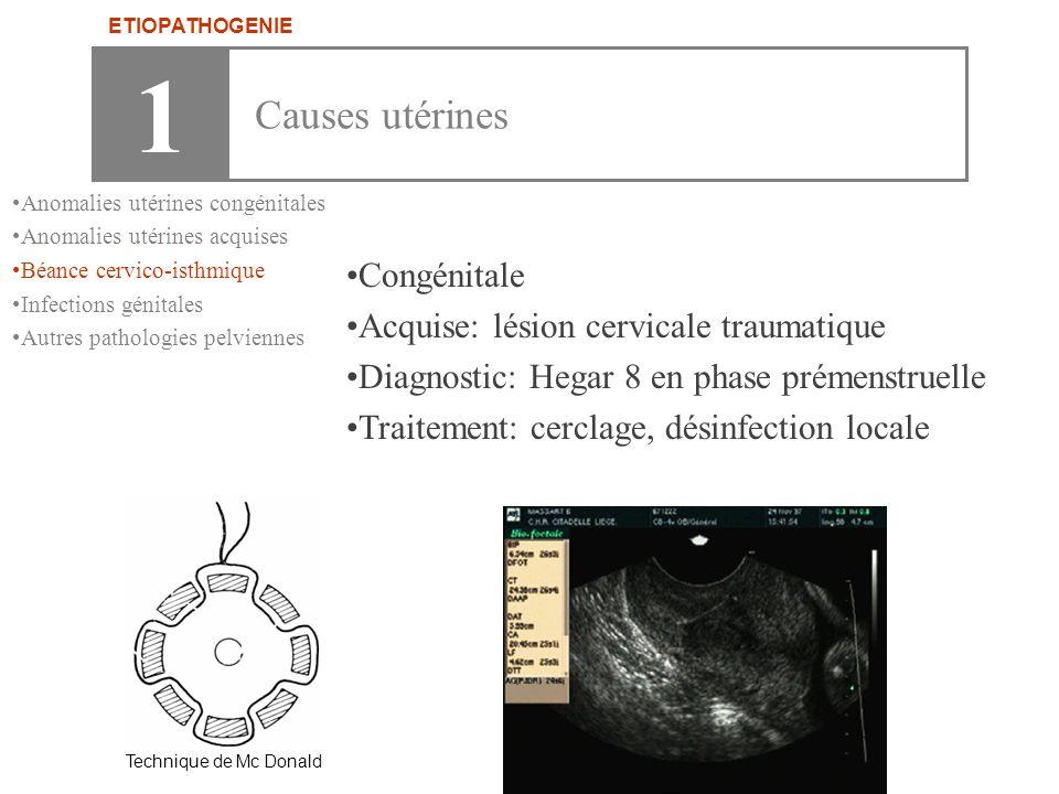 1 Causes utérines Congénitale Acquise: lésion cervicale traumatique