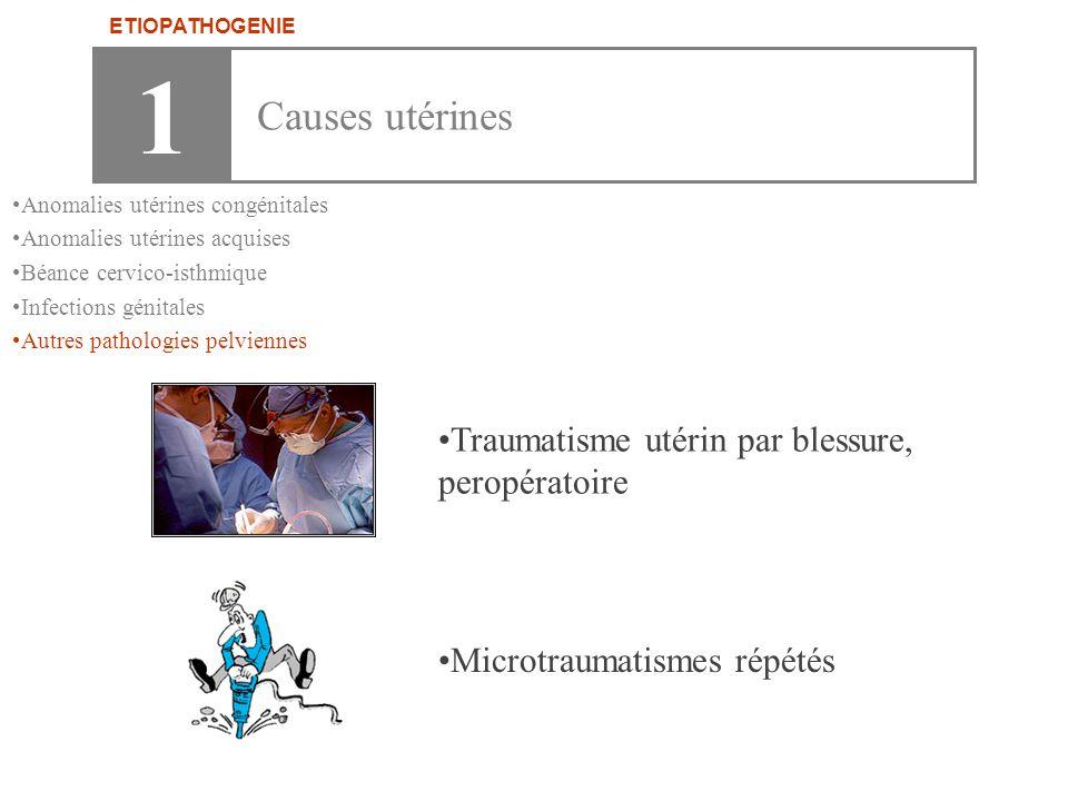 1 Causes utérines Traumatisme utérin par blessure, peropératoire