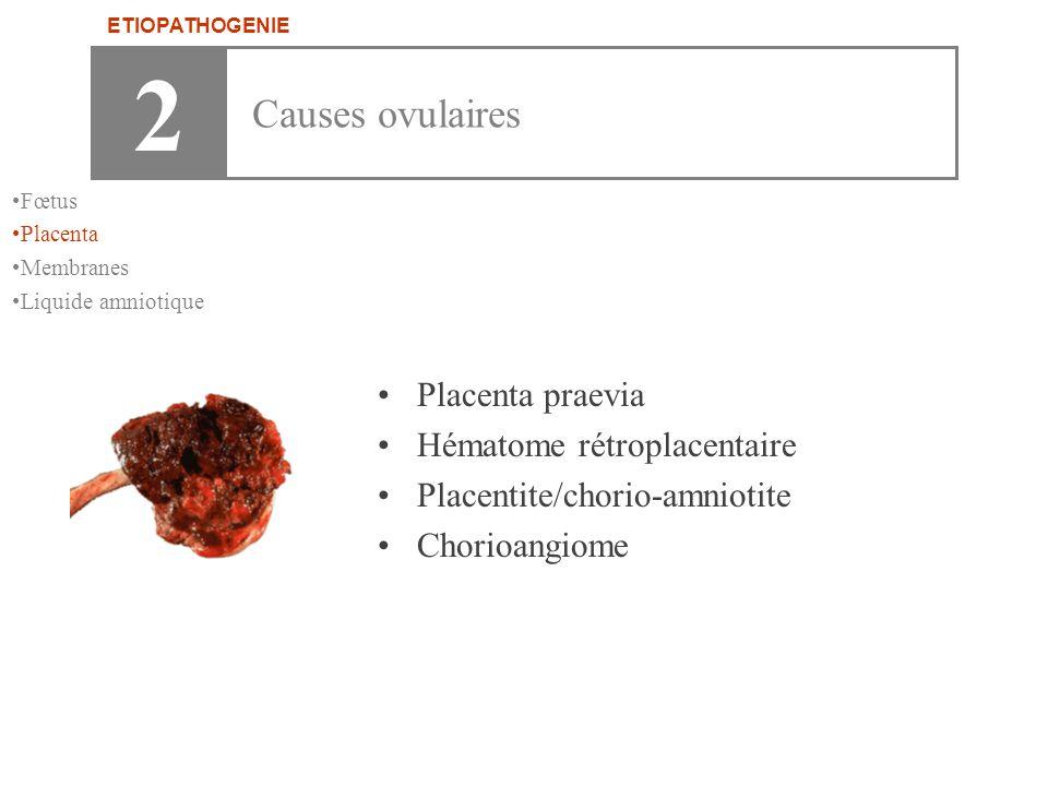 2 Causes ovulaires Placenta praevia Hématome rétroplacentaire