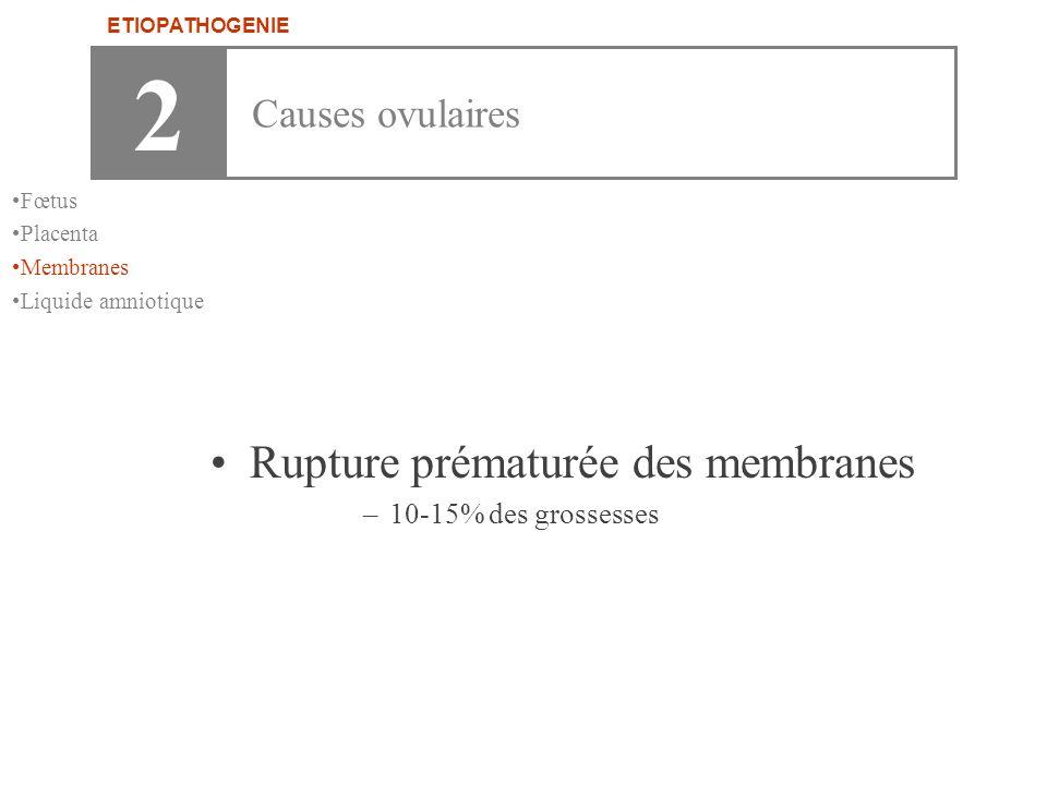 2 Rupture prématurée des membranes Causes ovulaires