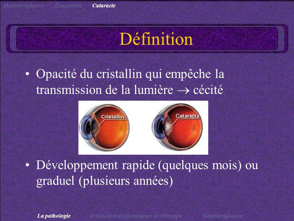 Matériovigilance Évaluation. Cataracte. Définition. Opacité du cristallin qui empêche la transmission de la lumière  cécité.