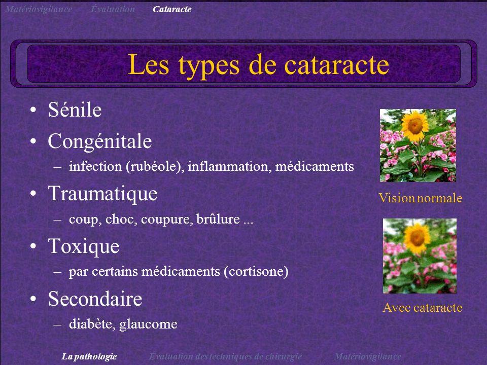 Les types de cataracte Sénile Congénitale Traumatique Toxique