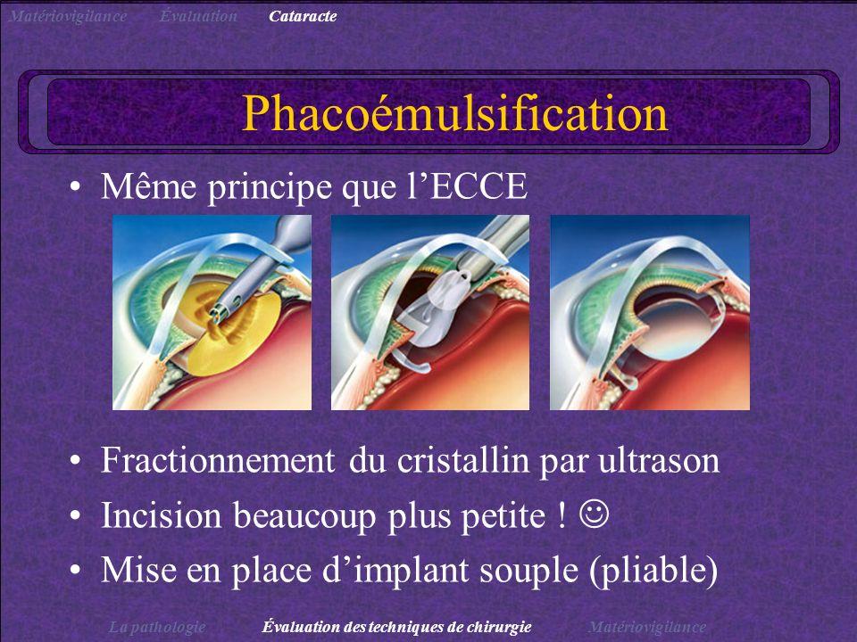 Phacoémulsification Même principe que l'ECCE