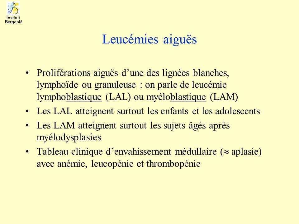 Institut Bergonié. Leucémies aiguës.