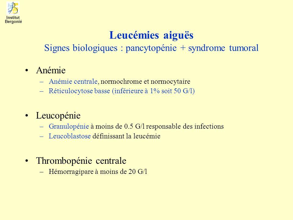Leucémies aiguës Signes biologiques : pancytopénie + syndrome tumoral