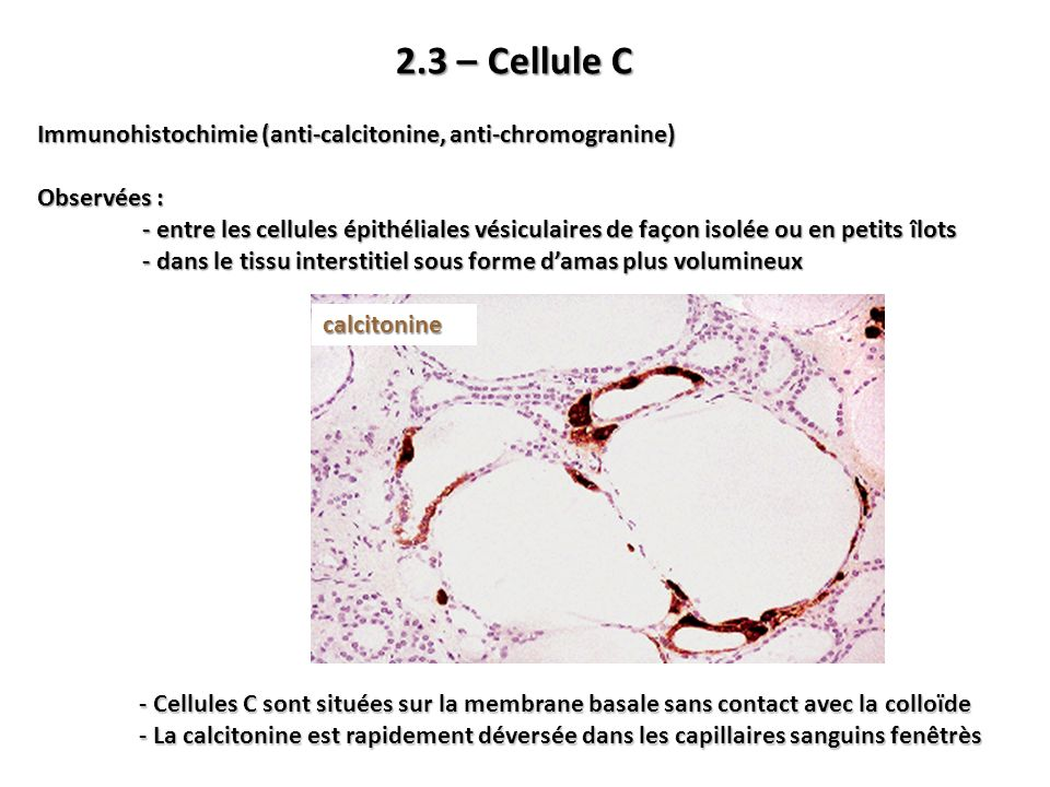 2.3 – Cellule C Immunohistochimie (anti-calcitonine, anti-chromogranine) Observées :