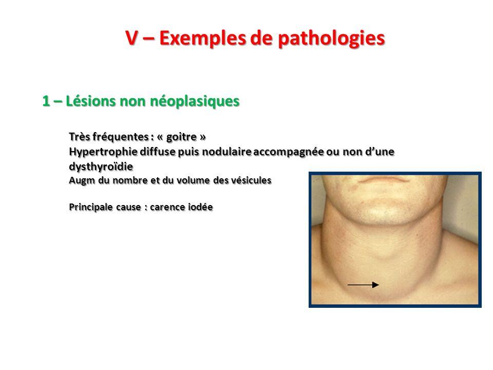 V – Exemples de pathologies