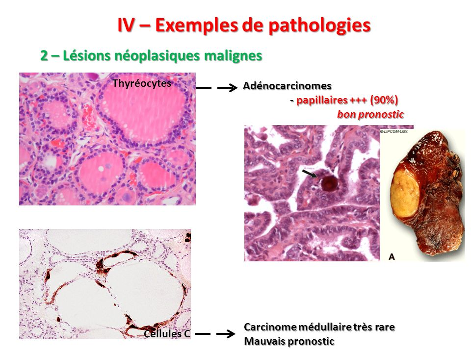 IV – Exemples de pathologies