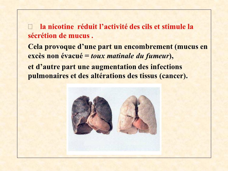 Þ la nicotine réduit l'activité des cils et stimule la sécrétion de mucus .
