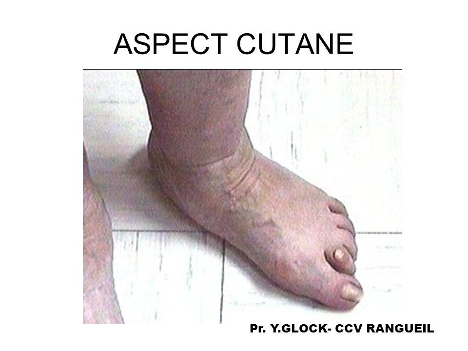 ASPECT CUTANE Pr. Y.GLOCK- CCV RANGUEIL