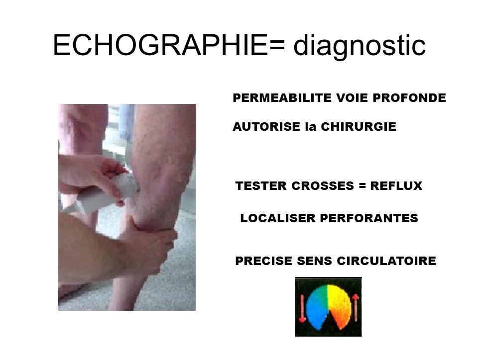 ECHOGRAPHIE= diagnostic