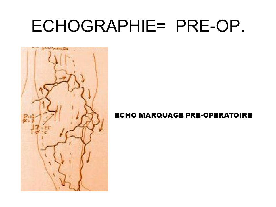 ECHOGRAPHIE= PRE-OP. ECHO MARQUAGE PRE-OPERATOIRE