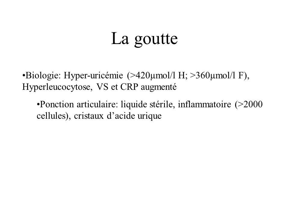 La goutte Biologie: Hyper-uricémie (>420µmol/l H; >360µmol/l F), Hyperleucocytose, VS et CRP augmenté.