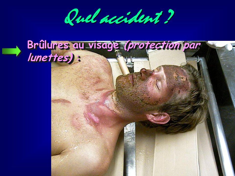 Quel accident Brûlures au visage (protection par lunettes) :