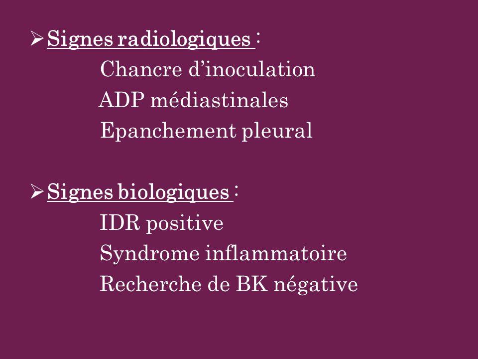 Signes radiologiques :