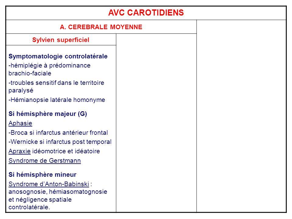 AVC CAROTIDIENS A. CEREBRALE MOYENNE Sylvien superficiel